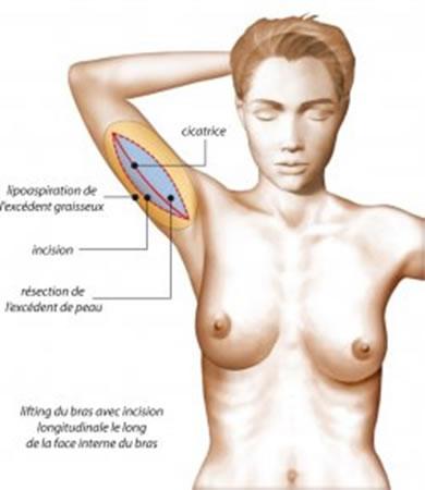 lifting-des-bras-bracchioplastie